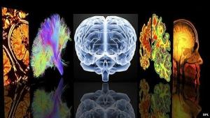 plasticidad del cerebroMaritéRodríguez-Neurociencia-Comunicación-Neuromarketing.Coach